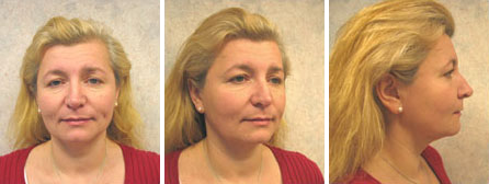 Facelift Before Image